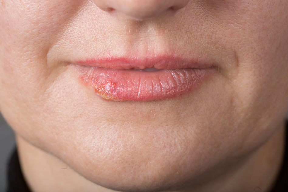 how to know when your getting a cold sore
